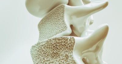 Cooper Complete Best Supplements to Strengthen Bones